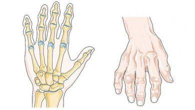 Descubren un método para revertir la artrosis